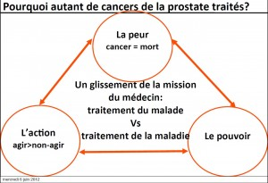 cancer de la prostate guillonneau